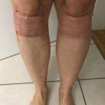 Knie mit Tape